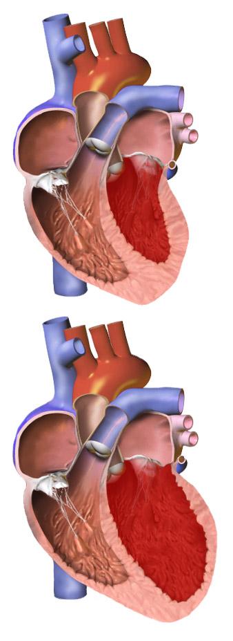 normal heart vs enlarged heart