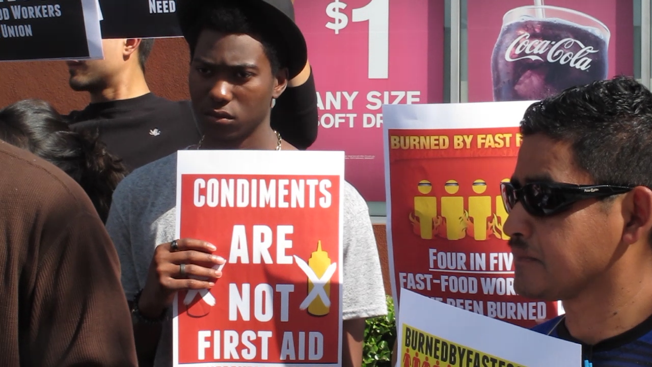 Burned McDonald's Worker