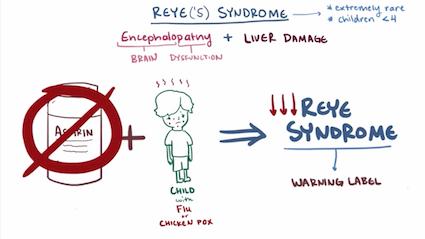 Reye's Syndrome illustration.