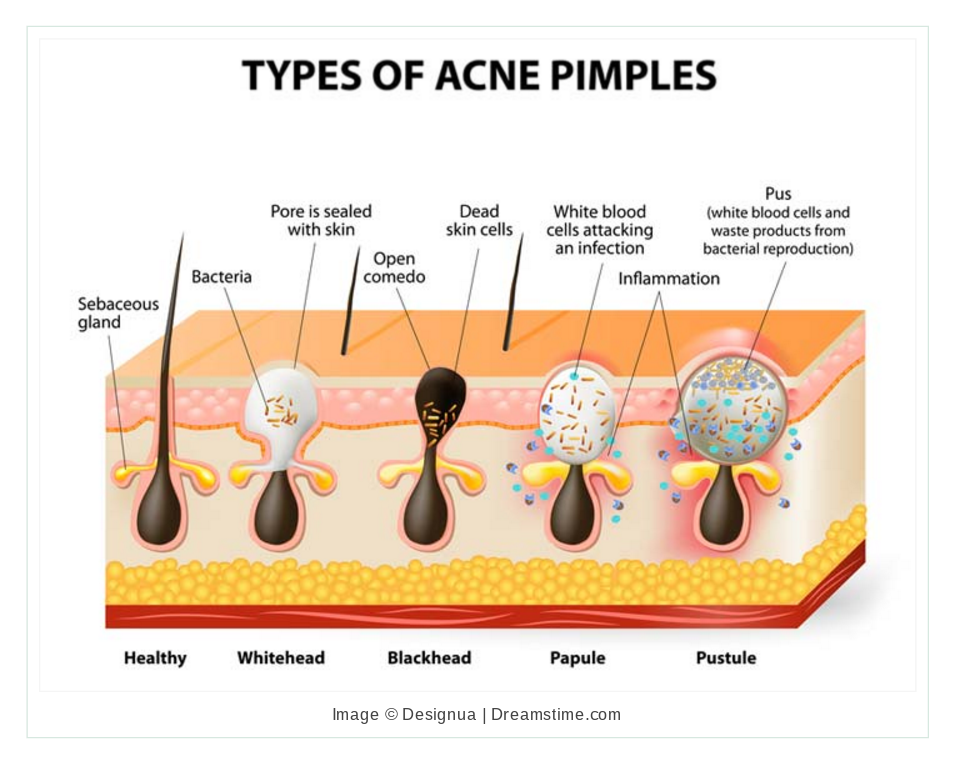 What Really Happens to Your Body When You Pop Pimples - ATTN: