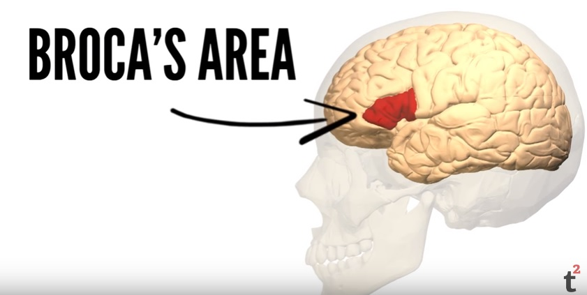 This is Broca's area.