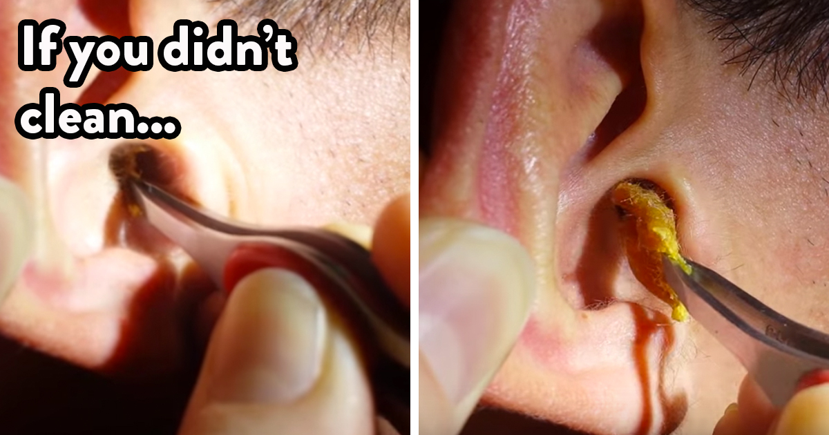 Removing Ear Wax 121