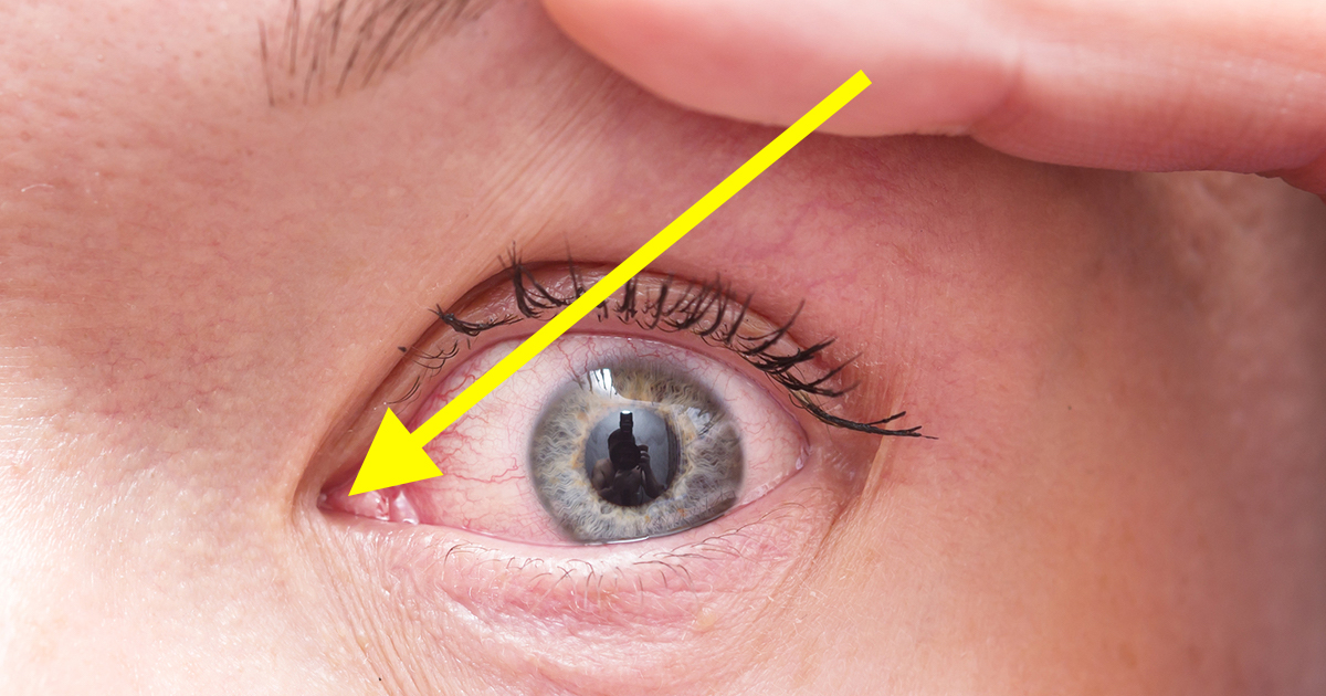 The Scientific Reason Why You Get Eye Boogers