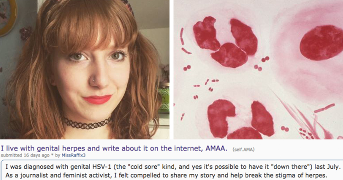 What Happened When This Woman Opened up About Herpes - ATTN: